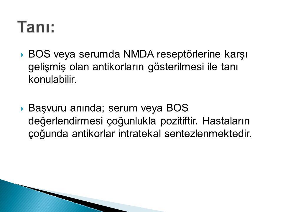  BOS veya serumda NMDA reseptörlerine karşı gelişmiş olan antikorların gösterilmesi ile tanı konulabilir.  Başvuru anında; serum veya BOS değerlendi