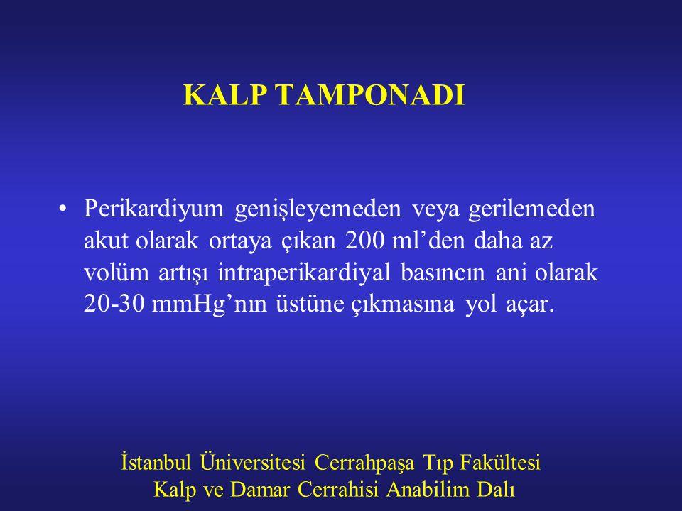 İstanbul Üniversitesi Cerrahpaşa Tıp Fakültesi Kalp ve Damar Cerrahisi Anabilim Dalı KALP TAMPONADI Perikardiyum genişleyemeden veya gerilemeden akut