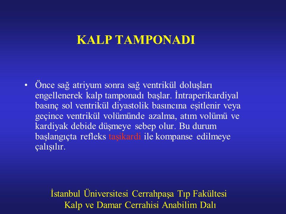 İstanbul Üniversitesi Cerrahpaşa Tıp Fakültesi Kalp ve Damar Cerrahisi Anabilim Dalı KALP TAMPONADI Önce sağ atriyum sonra sağ ventrikül doluşları eng