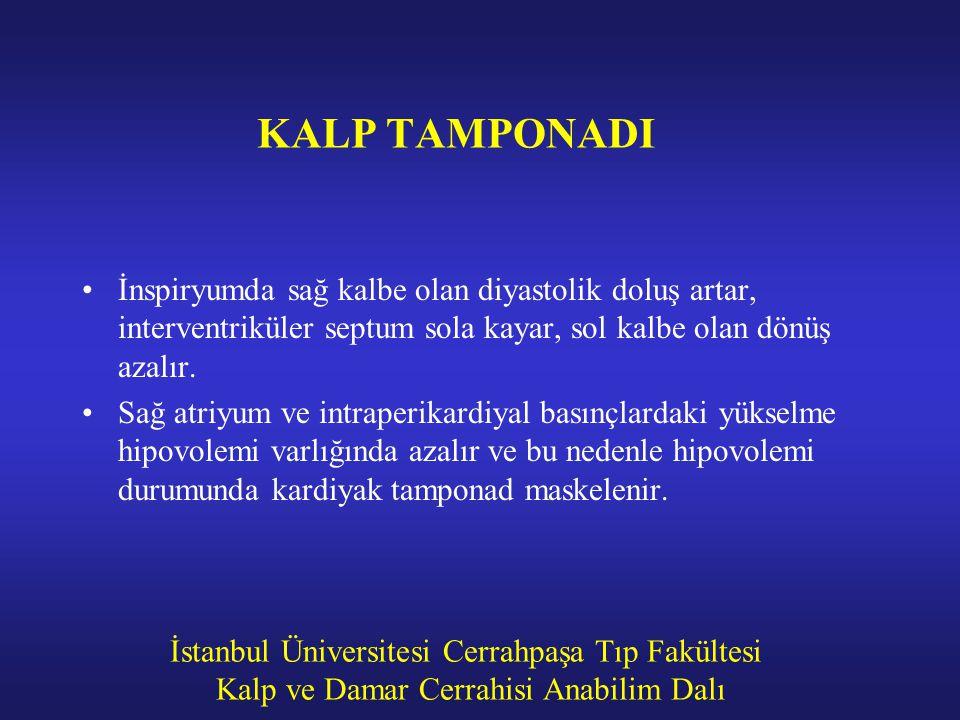 İstanbul Üniversitesi Cerrahpaşa Tıp Fakültesi Kalp ve Damar Cerrahisi Anabilim Dalı KALP TAMPONADI İnspiryumda sağ kalbe olan diyastolik doluş artar,