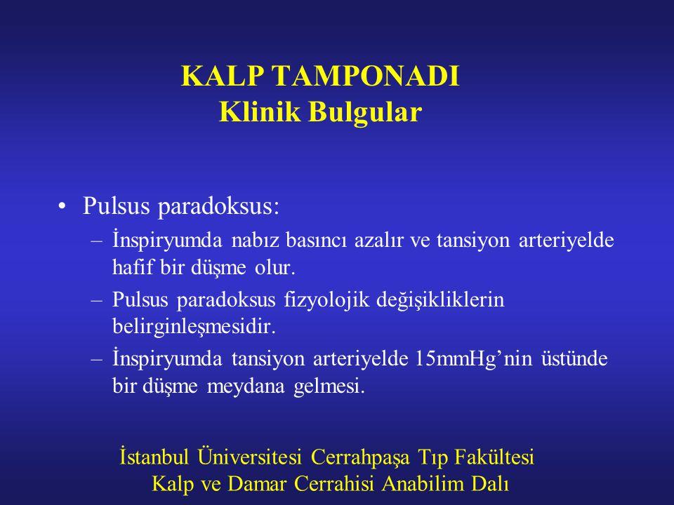İstanbul Üniversitesi Cerrahpaşa Tıp Fakültesi Kalp ve Damar Cerrahisi Anabilim Dalı KALP TAMPONADI Klinik Bulgular Pulsus paradoksus: –İnspiryumda na