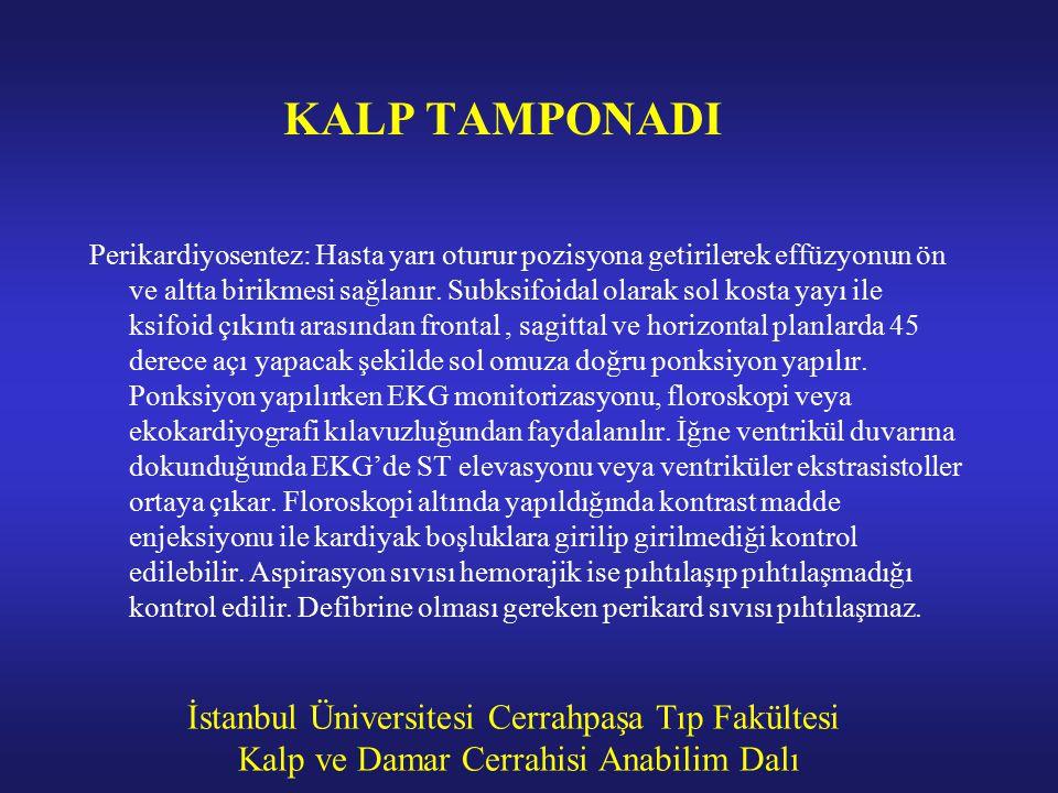 İstanbul Üniversitesi Cerrahpaşa Tıp Fakültesi Kalp ve Damar Cerrahisi Anabilim Dalı KALP TAMPONADI Perikardiyosentez: Hasta yarı oturur pozisyona get
