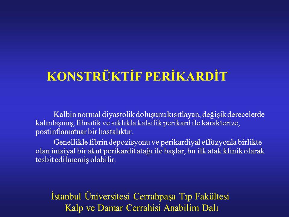 İstanbul Üniversitesi Cerrahpaşa Tıp Fakültesi Kalp ve Damar Cerrahisi Anabilim Dalı KONSTRÜKTİF PERİKARDİT Kalbin normal diyastolik doluşunu kısıtlay