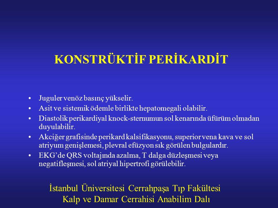 İstanbul Üniversitesi Cerrahpaşa Tıp Fakültesi Kalp ve Damar Cerrahisi Anabilim Dalı KONSTRÜKTİF PERİKARDİT Juguler venöz basınç yükselir. Asit ve sis