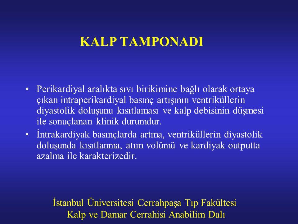İstanbul Üniversitesi Cerrahpaşa Tıp Fakültesi Kalp ve Damar Cerrahisi Anabilim Dalı KALP TAMPONADI Perikardiyal aralıkta sıvı birikimine bağlı olarak