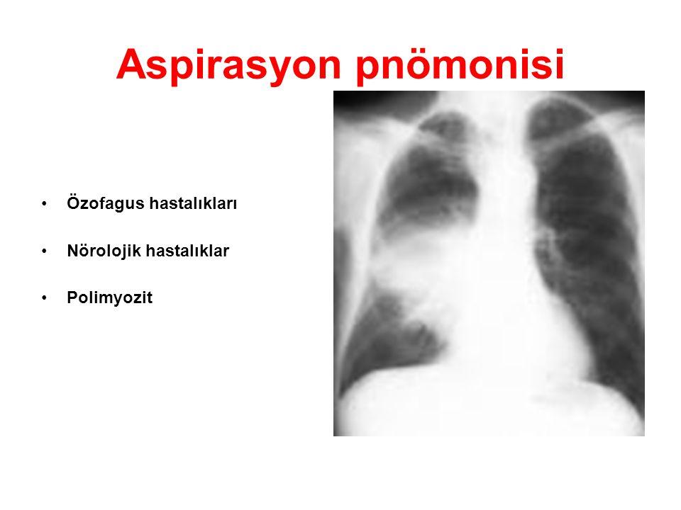 Aspirasyon pnömonisi Özofagus hastalıkları Nörolojik hastalıklar Polimyozit