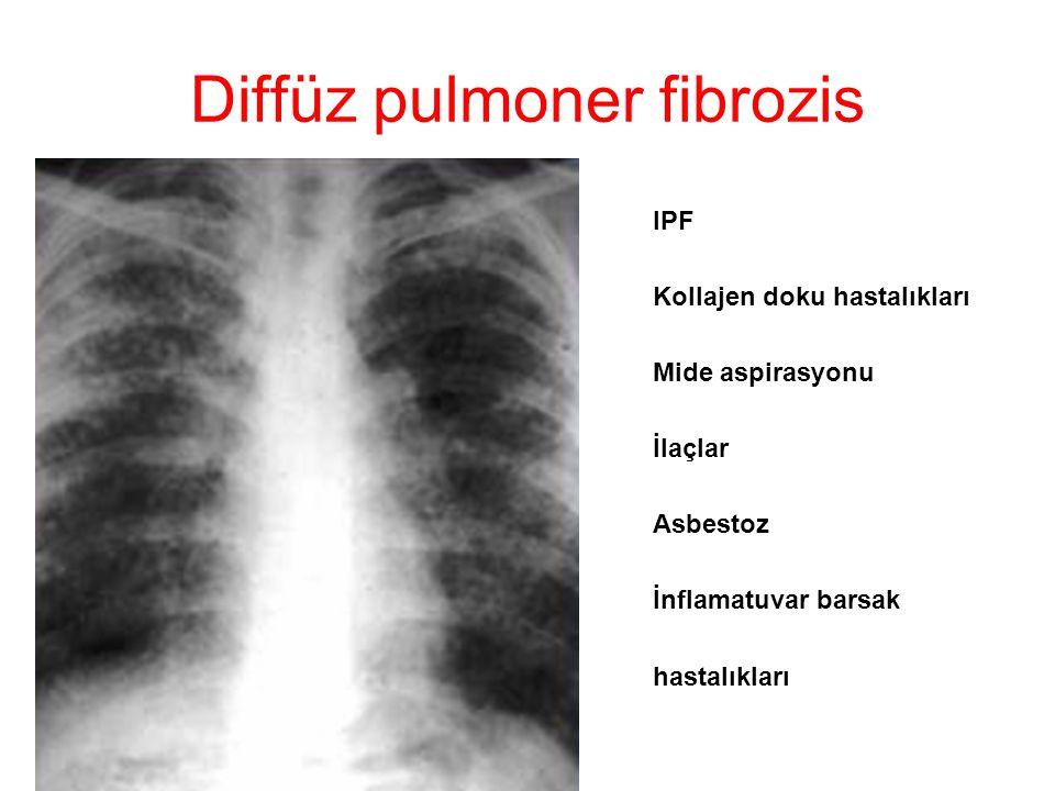 Diffüz pulmoner fibrozis IPF Kollajen doku hastalıkları Mide aspirasyonu İlaçlar Asbestoz İnflamatuvar barsak hastalıkları