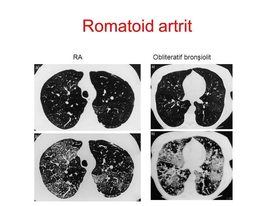 Romatoid artrit RAObliteratif bronşiolit