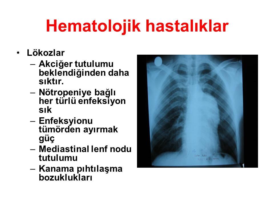 Hematolojik hastalıklar Lökozlar –Akciğer tutulumu beklendiğinden daha sıktır. –Nötropeniye bağlı her türlü enfeksiyon sık –Enfeksyionu tümörden ayırm