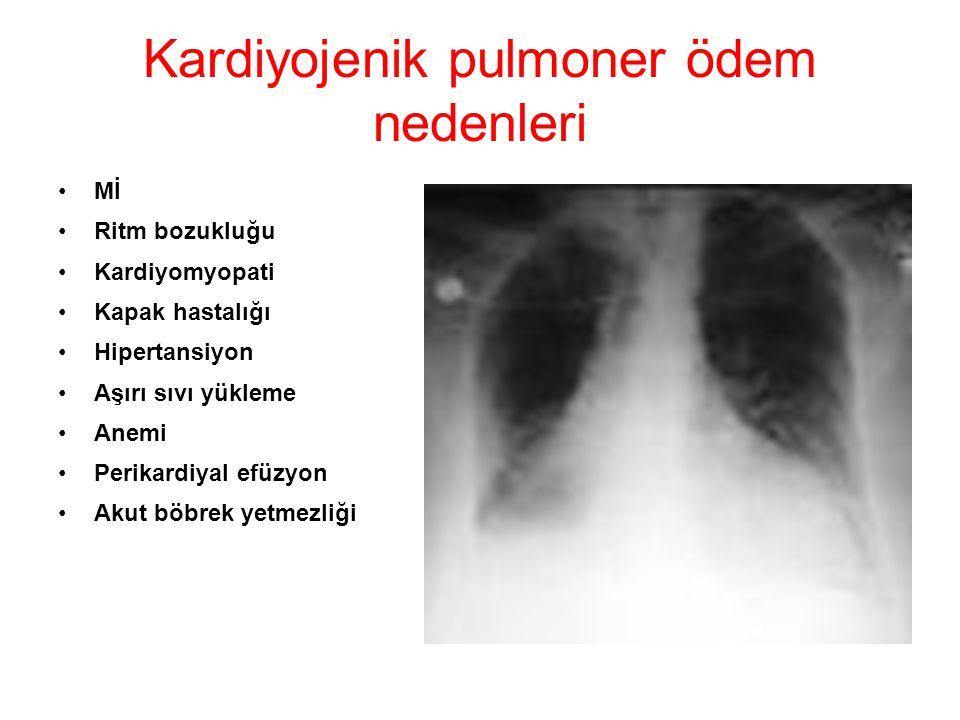 Kardiyojenik pulmoner ödem nedenleri Mİ Ritm bozukluğu Kardiyomyopati Kapak hastalığı Hipertansiyon Aşırı sıvı yükleme Anemi Perikardiyal efüzyon Akut