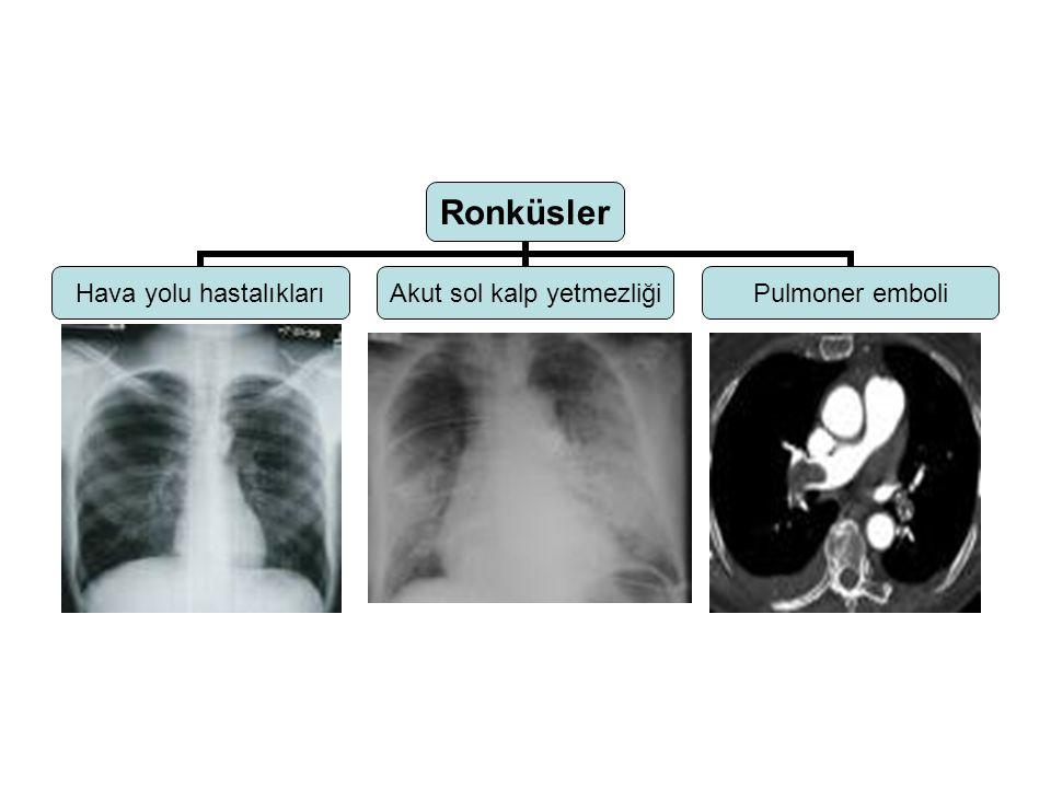 Yaygın raller KKYDİF Alveolaer hemoraji Bronşektazi Hpersensitivite pnm