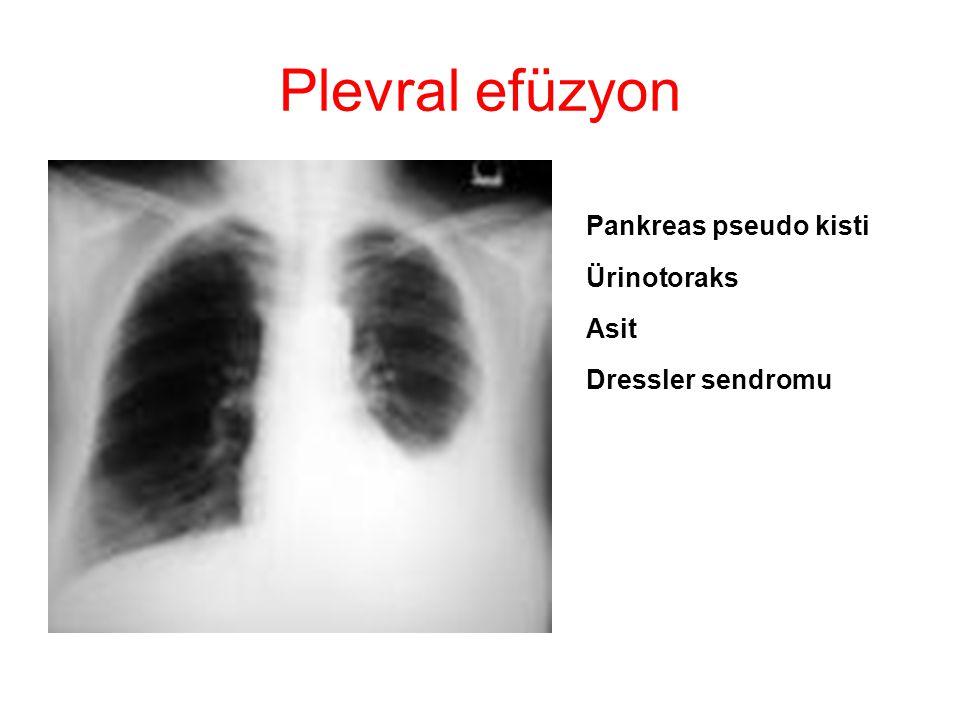 Plevral efüzyon Kollajen doku hastalıkları Üremik plevral effüzyon P emboli İlaçlar Dressler sendromu Asit (Siroz, meigs sendromu, periton diyalizi vs)