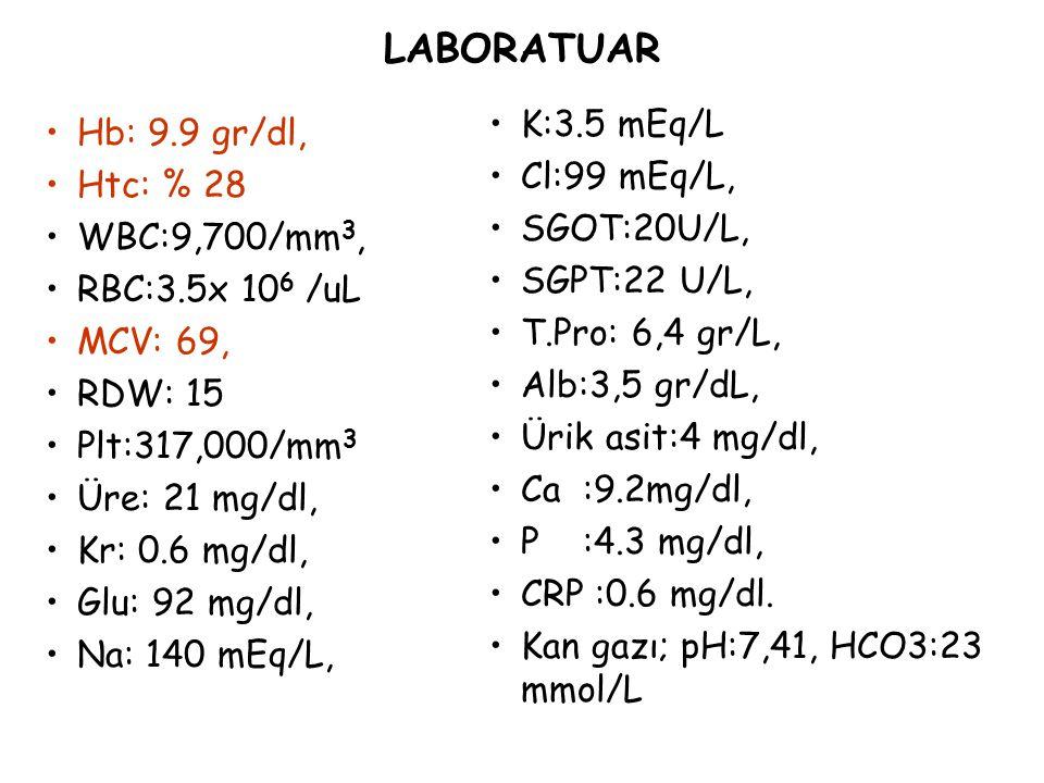 LABORATUAR Hb: 9.9 gr/dl, Htc: % 28 WBC:9,700/mm 3, RBC:3.5x 10 6 /uL MCV: 69, RDW: 15 Plt:317,000/mm 3 Üre: 21 mg/dl, Kr: 0.6 mg/dl, Glu: 92 mg/dl, N