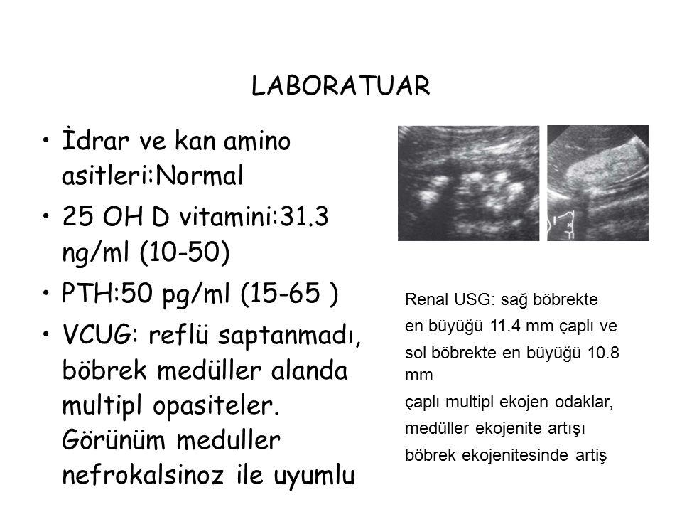 LABORATUAR İdrar ve kan amino asitleri:Normal 25 OH D vitamini:31.3 ng/ml (10-50) PTH:50 pg/ml (15-65 ) VCUG: reflü saptanmadı, böbrek medüller alanda