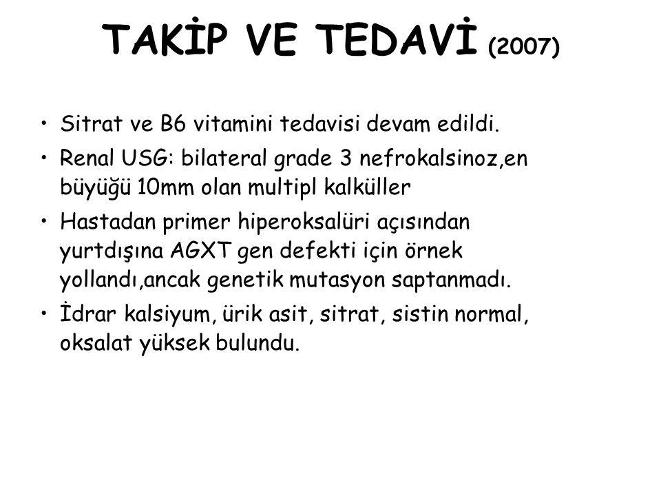 TAKİP VE TEDAVİ (2007) Sitrat ve B6 vitamini tedavisi devam edildi. Renal USG: bilateral grade 3 nefrokalsinoz,en büyüğü 10mm olan multipl kalküller H