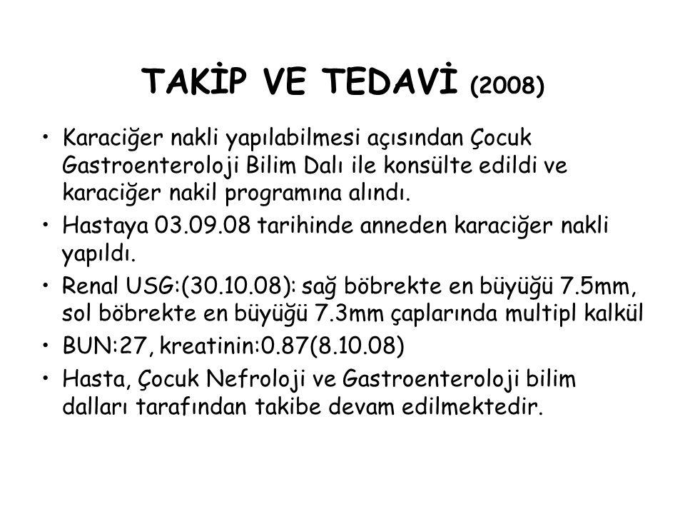 TAKİP VE TEDAVİ (2008) Karaciğer nakli yapılabilmesi açısından Çocuk Gastroenteroloji Bilim Dalı ile konsülte edildi ve karaciğer nakil programına alı