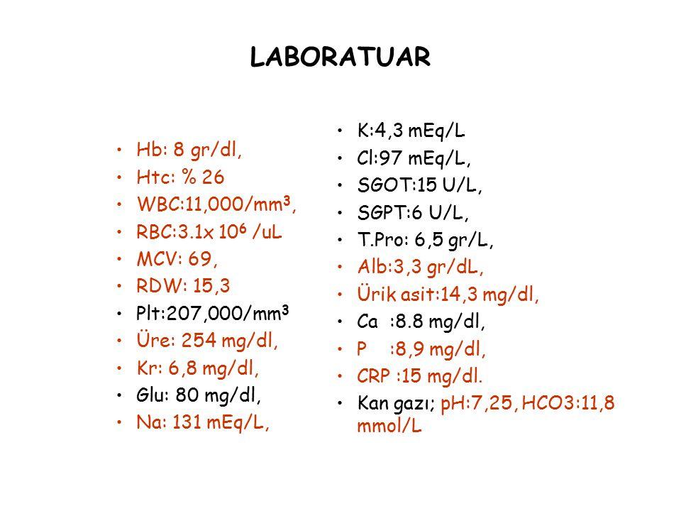 LABORATUAR Hb: 8 gr/dl, Htc: % 26 WBC:11,000/mm 3, RBC:3.1x 10 6 /uL MCV: 69, RDW: 15,3 Plt:207,000/mm 3 Üre: 254 mg/dl, Kr: 6,8 mg/dl, Glu: 80 mg/dl,