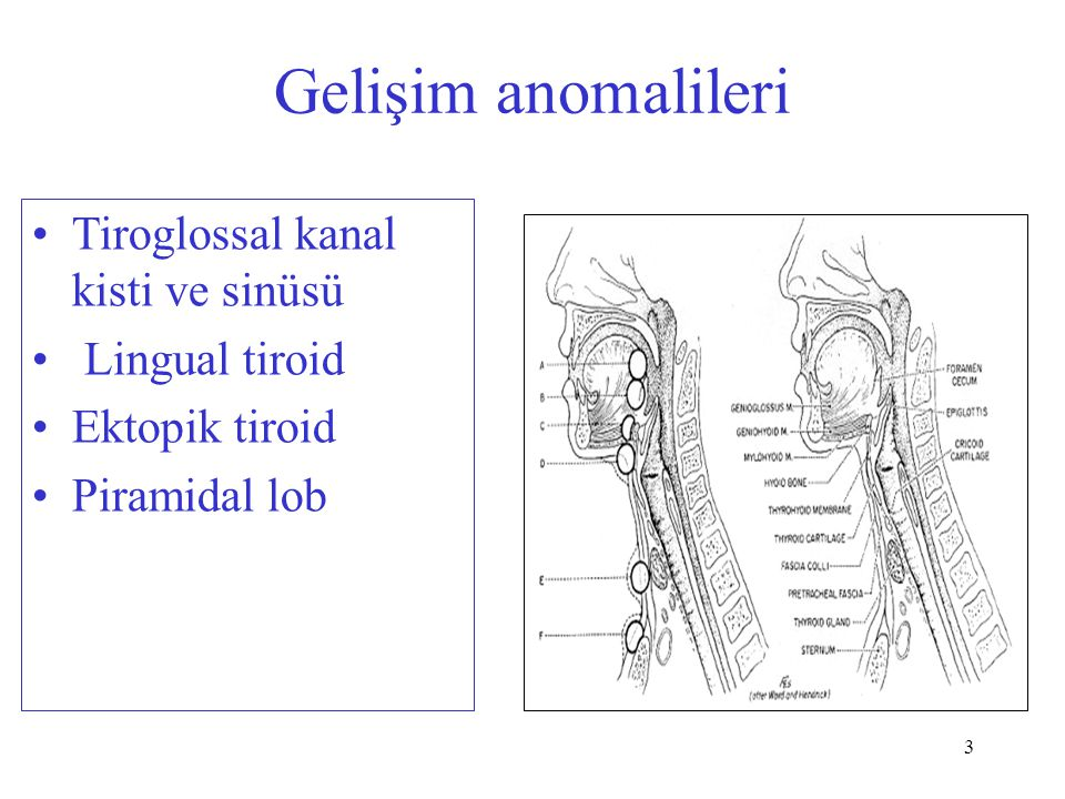 3 Gelişim anomalileri Tiroglossal kanal kisti ve sinüsü Lingual tiroid Ektopik tiroid Piramidal lob