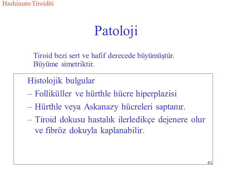 61 Patoloji Histolojik bulgular –Folliküller ve hürthle hücre hiperplazisi –Hürthle veya Askanazy hücreleri saptanır.