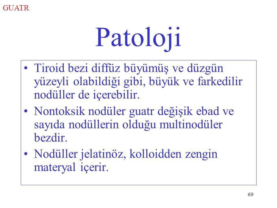 69 Patoloji Tiroid bezi diffüz büyümüş ve düzgün yüzeyli olabildiği gibi, büyük ve farkedilir nodüller de içerebilir.