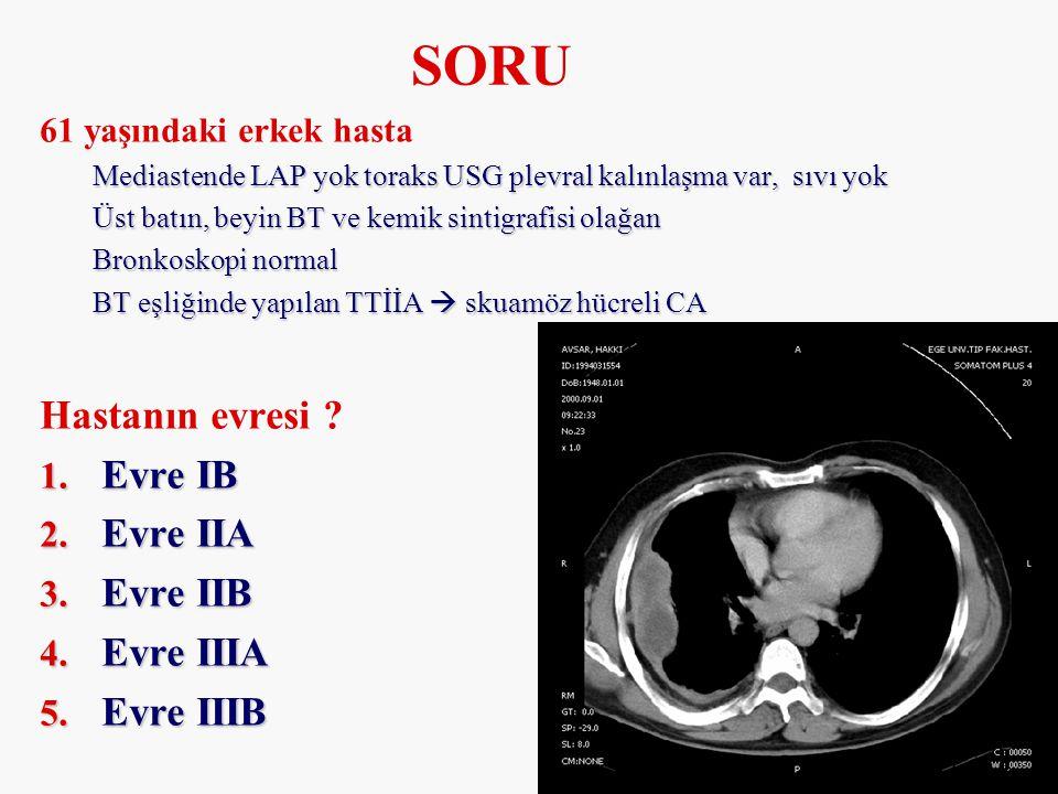 61 yaşındaki erkek hasta Mediastende LAP yok toraks USG plevral kalınlaşma var, sıvı yok Üst batın, beyin BT ve kemik sintigrafisi olağan Bronkoskopi