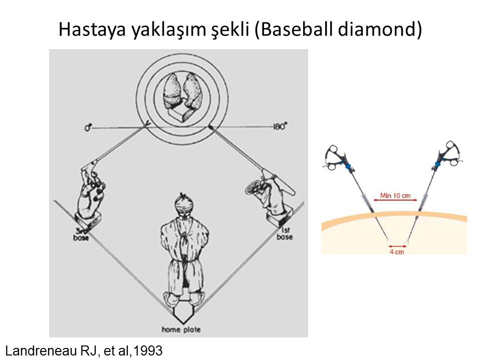 Hastaya yaklaşım şekli (Baseball diamond) Landreneau RJ, et al,1993