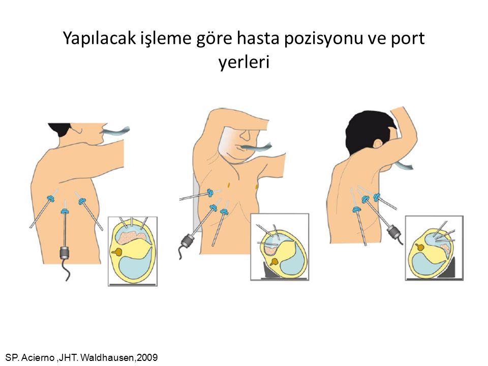 Yapılacak işleme göre hasta pozisyonu ve port yerleri SP. Acierno,JHT. Waldhausen,2009