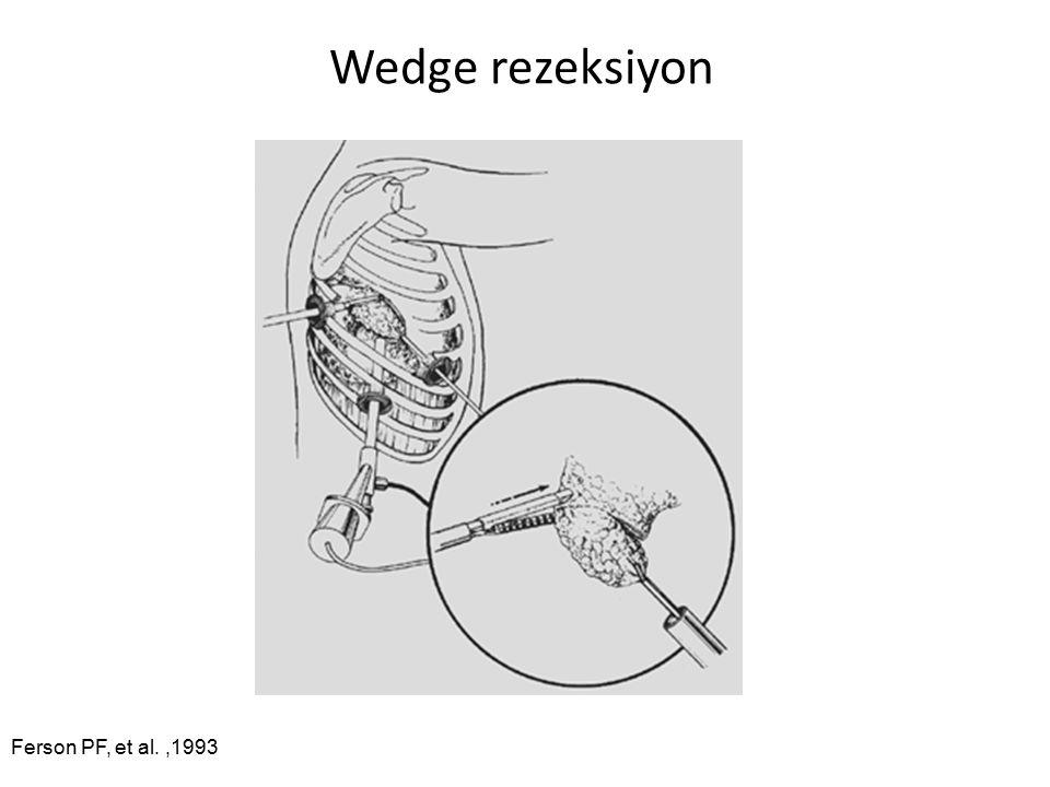 Wedge rezeksiyon Ferson PF, et al.,1993