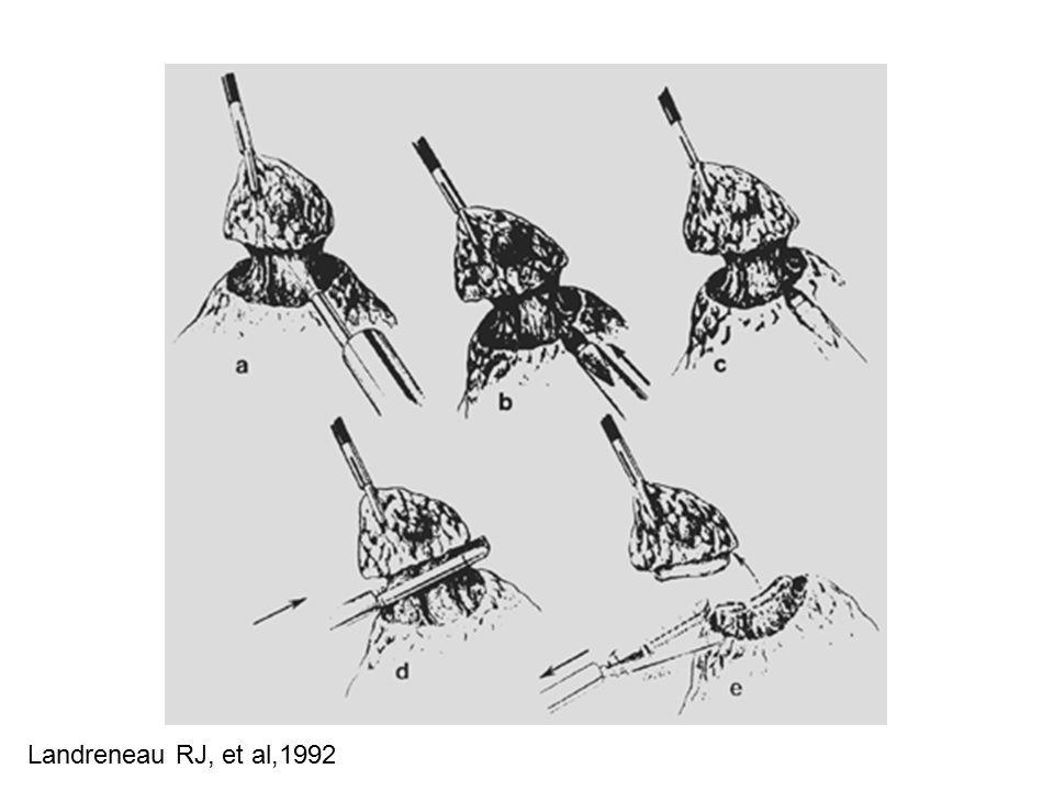 Landreneau RJ, et al,1992