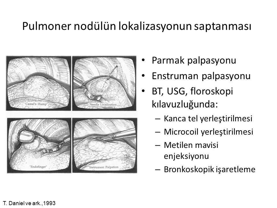 Pulmoner nodülün lokalizasyonun saptanması Parmak palpasyonu Enstruman palpasyonu BT, USG, floroskopi kılavuzluğunda: – Kanca tel yerleştirilmesi – Microcoil yerleştirilmesi – Metilen mavisi enjeksiyonu – Bronkoskopik işaretleme T.