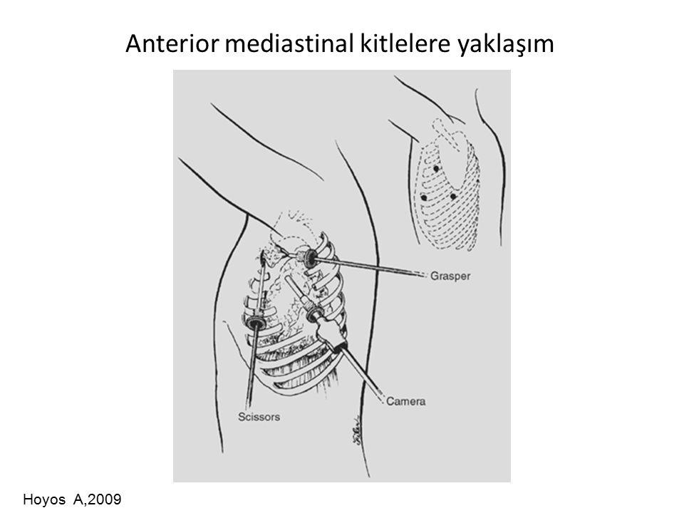 Anterior mediastinal kitlelere yaklaşım Hoyos A,2009