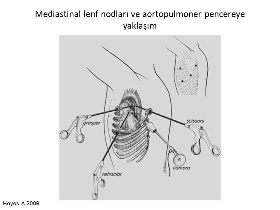 Mediastinal lenf nodları ve aortopulmoner pencereye yaklaşım Hoyos A,2009