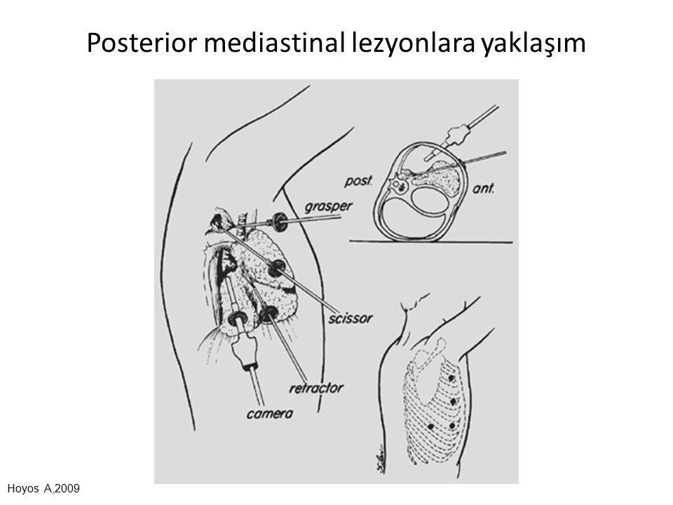 Posterior mediastinal lezyonlara yaklaşım Hoyos A,2009
