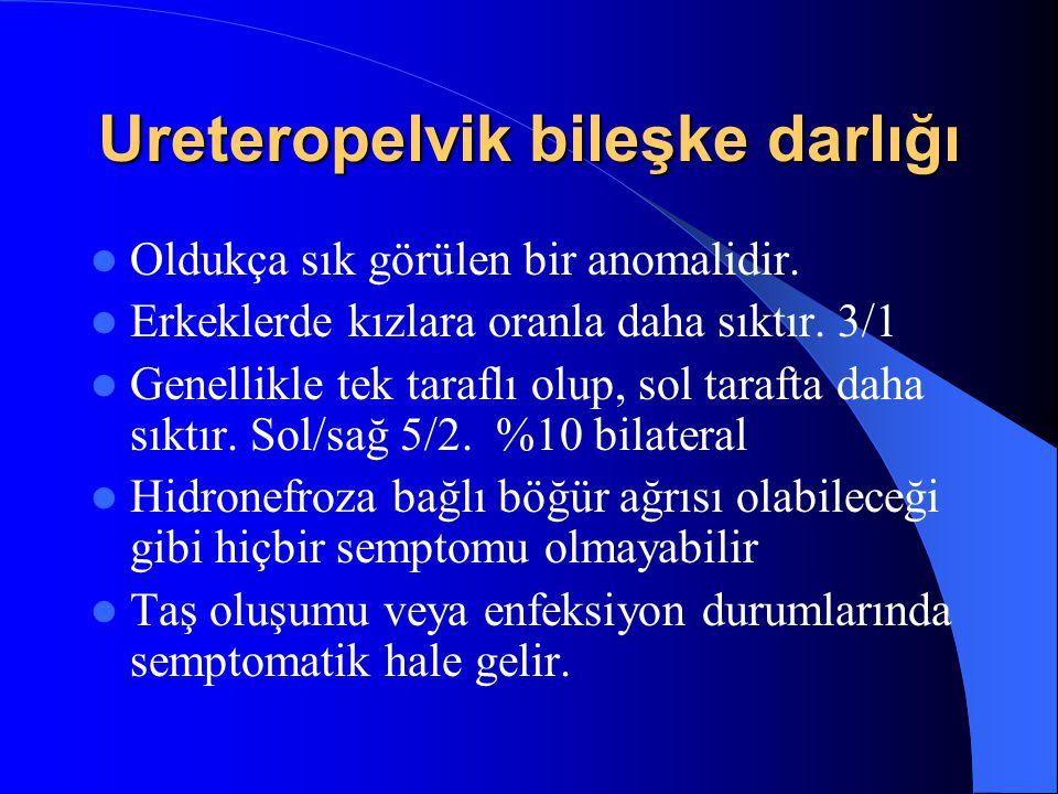 Ureteropelvik bileşke darlığı Oldukça sık görülen bir anomalidir. Erkeklerde kızlara oranla daha sıktır. 3/1 Genellikle tek taraflı olup, sol tarafta