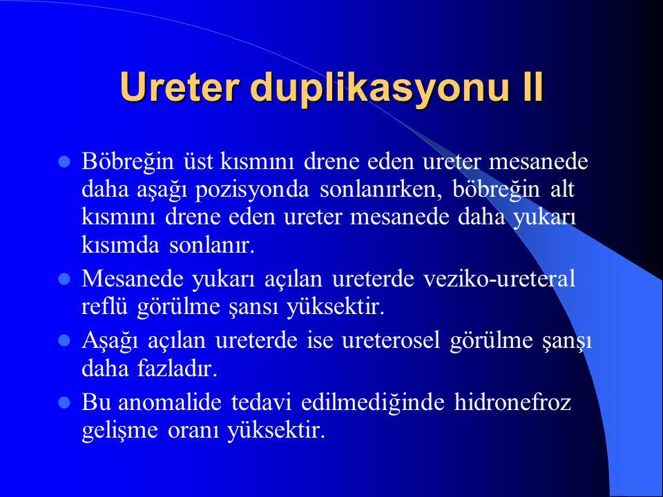 Ureter duplikasyonu II Böbreğin üst kısmını drene eden ureter mesanede daha aşağı pozisyonda sonlanırken, böbreğin alt kısmını drene eden ureter mesan