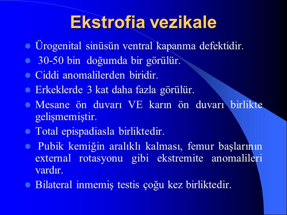 Ekstrofia vezikale Ürogenital sinüsün ventral kapanma defektidir. 30-50 bin doğumda bir görülür. Ciddi anomalilerden biridir. Erkeklerde 3 kat daha fa
