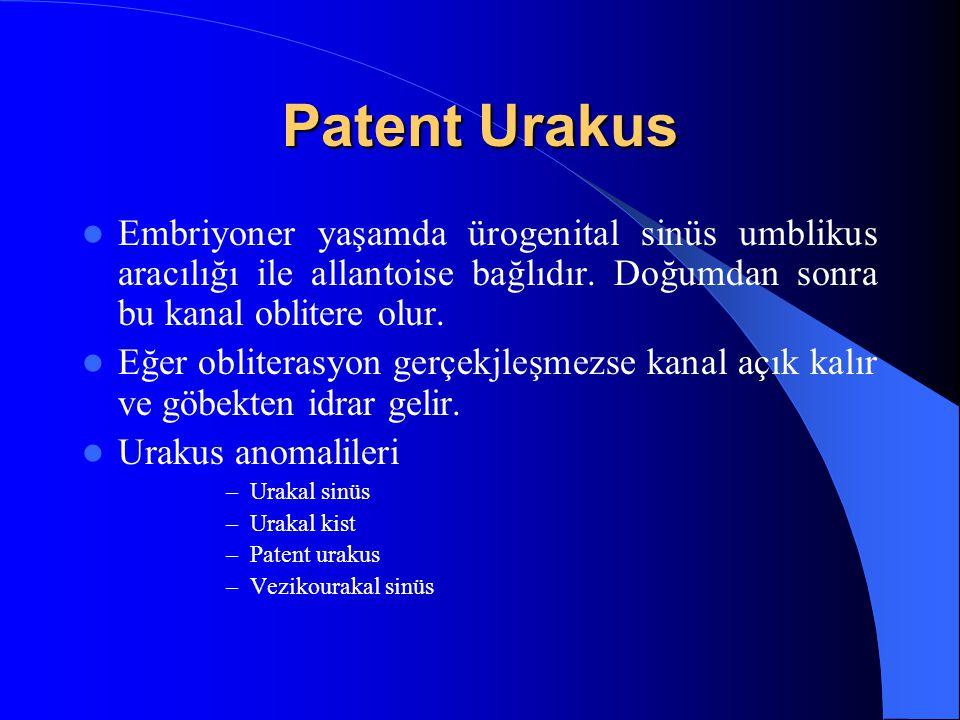 Patent Urakus Embriyoner yaşamda ürogenital sinüs umblikus aracılığı ile allantoise bağlıdır. Doğumdan sonra bu kanal oblitere olur. Eğer obliterasyon