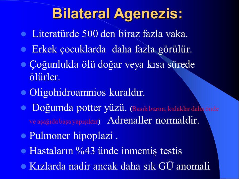 Bilateral Agenezis: Literatürde 500 den biraz fazla vaka. Erkek çocuklarda daha fazla görülür. Çoğunlukla ölü doğar veya kısa sürede ölürler. Oligohid
