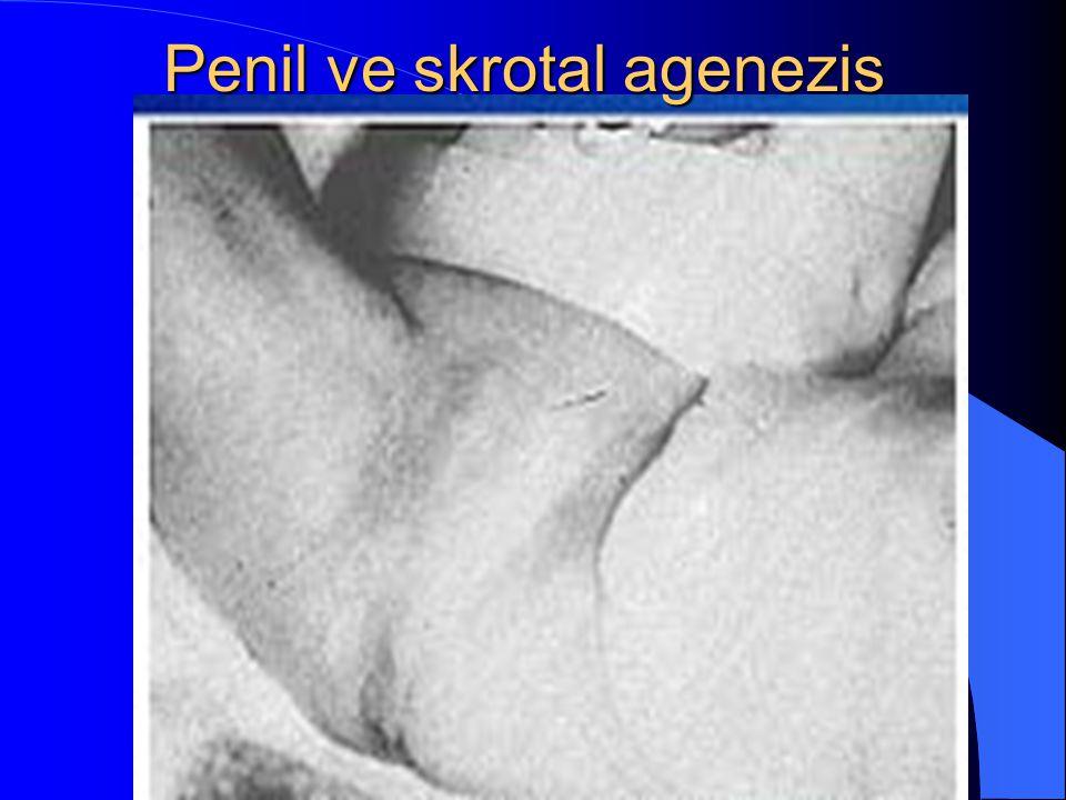 Penil ve skrotal agenezis