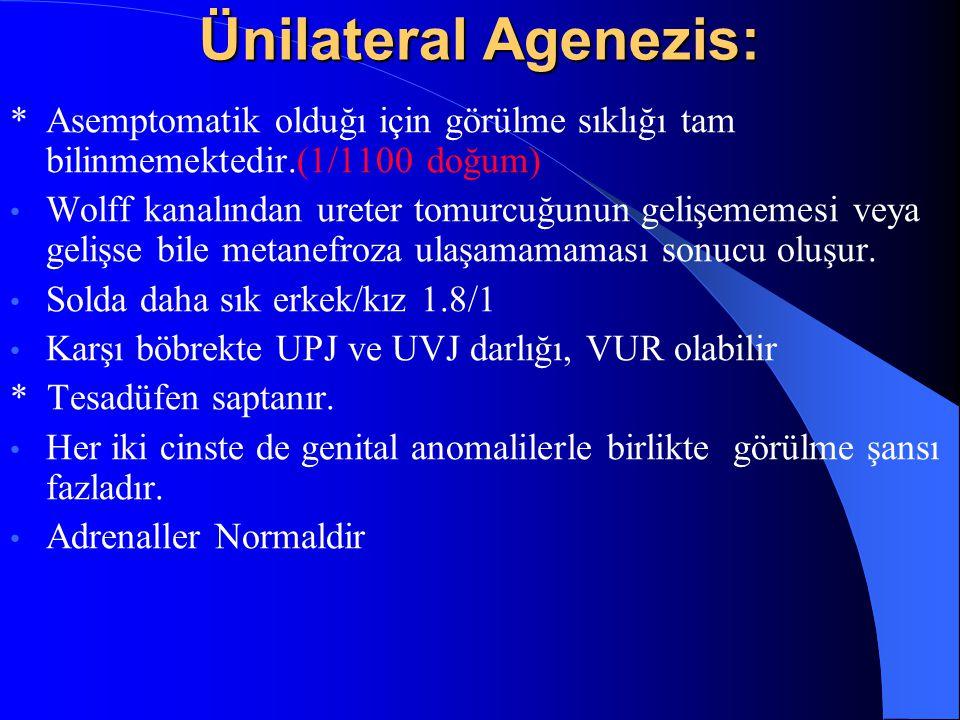 Ünilateral Agenezis: *Asemptomatik olduğı için görülme sıklığı tam bilinmemektedir.(1/1100 doğum) Wolff kanalından ureter tomurcuğunun gelişememesi ve