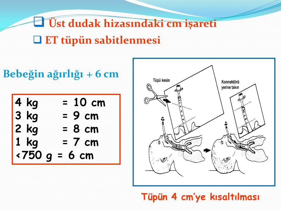Bebeğin ağırlığı + 6 cm 4 kg = 10 cm 3 kg = 9 cm 2 kg = 8 cm 1 kg = 7 cm <750 g = 6 cm  Üst dudak hizasındaki cm işareti  ET tüpün sabitlenmesi Tüpü