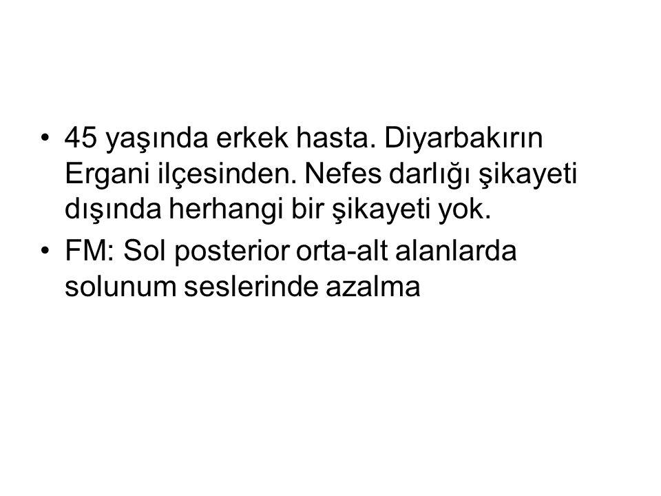 45 yaşında erkek hasta. Diyarbakırın Ergani ilçesinden. Nefes darlığı şikayeti dışında herhangi bir şikayeti yok. FM: Sol posterior orta-alt alanlarda
