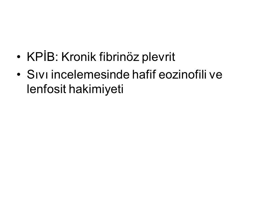 KPİB: Kronik fibrinöz plevrit Sıvı incelemesinde hafif eozinofili ve lenfosit hakimiyeti