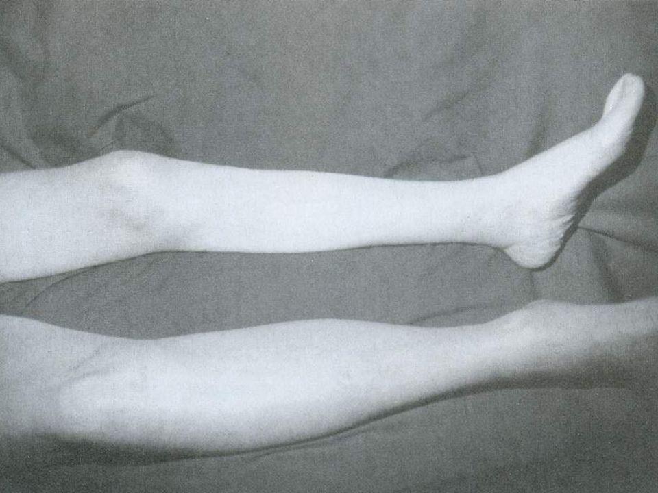 DVT de 3 ayrı birbirini takip eden klinik tablo olabilir. DVT de 3 ayrı birbirini takip eden klinik tablo olabilir.  1)Phlegmasia alba dolens: (şiş b