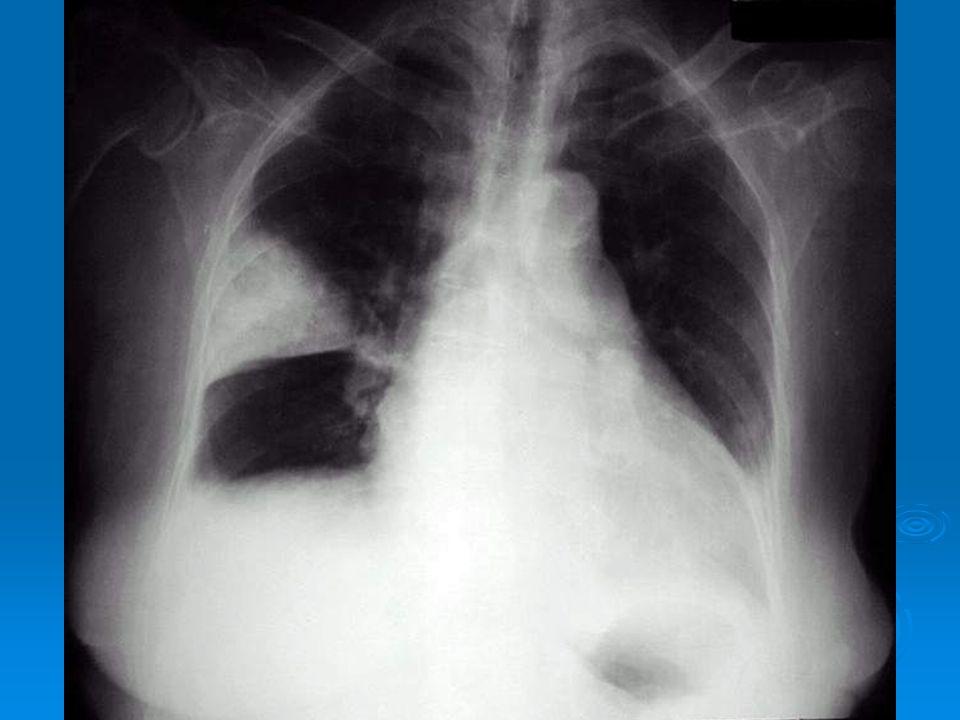 Akciğer grafisi: PTE geçiren olguların çoğunda akciğer grafisi normaldir. Akciğer grafisi ayırıcı tanıda yardımcıdır. PTE de göğüs filminde sıklıkla a