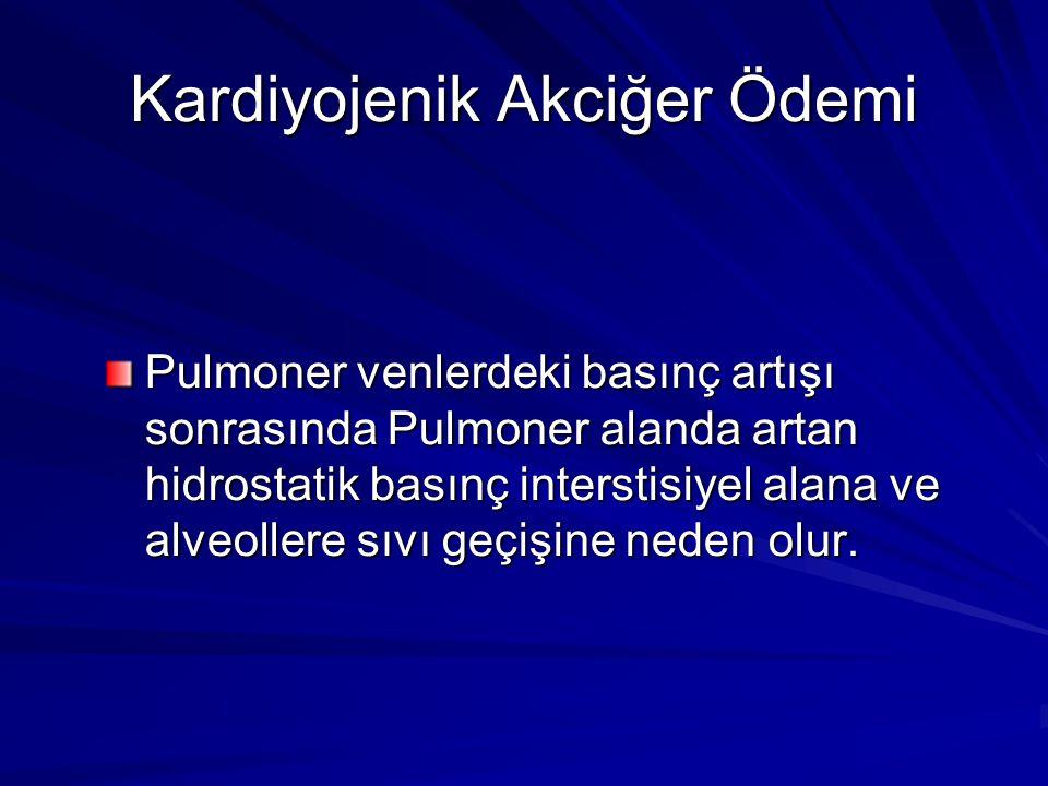 Kardiyojenik Akciğer Ödemi Pulmoner venlerdeki basınç artışı sonrasında Pulmoner alanda artan hidrostatik basınç interstisiyel alana ve alveollere sıv