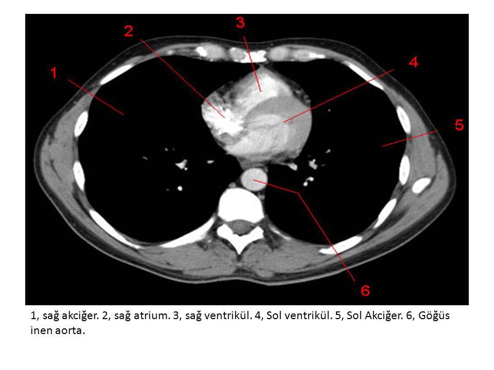 1, sağ akciğer.2, sağ atrium. 3, sağ ventrikül. 4, Sol ventrikül.
