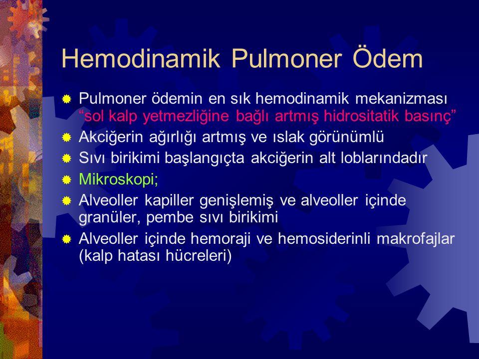 """Hemodinamik Pulmoner Ödem  Pulmoner ödemin en sık hemodinamik mekanizması """"sol kalp yetmezliğine bağlı artmış hidrositatik basınç""""  Akciğerin ağırlı"""
