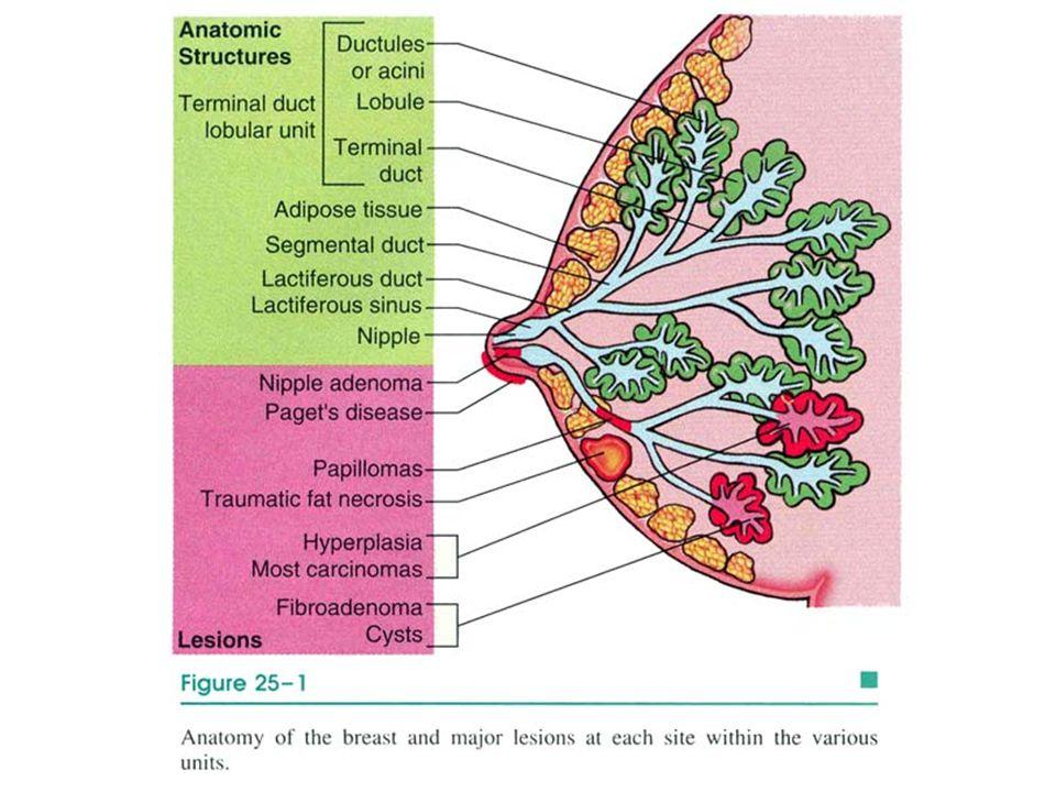 TDLÜ: Lobüler yapıdadır Hormona duyarlı mikzoid stroması var Elastik lif içermez Meme stroması.
