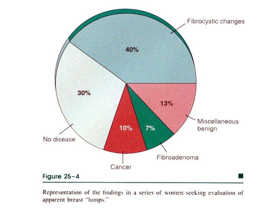 FİBROKİSTİK DEĞİŞİKLİK (Fibröz Displazi) Aşağıdaki bulgularda 2 veya 3 ü var ise: Fibrozis Kistik duktuslar Apokrin metaplazi- apokrin adenozis Adenozis –*Sklerozan adenozis=SA –Mikroglandüler adenozis=MGA Radiyal skar *Epitel Hiperplazileri *Küçük duktus papillomları *Proliferatif meme hastalıkları (kanser riski var, diğerlerinin yok)